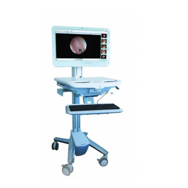 Imaging cart, Shultz Medical